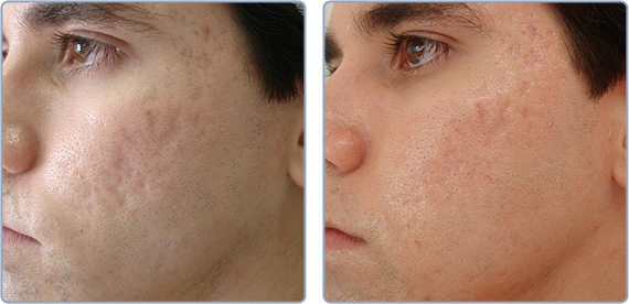 Acne Scar Elimination Denver Centennial Laser