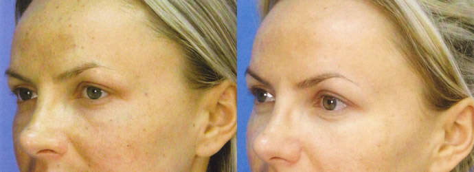 Age Spot Removal Before & After