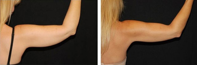 Laser Fat Removal Before & After