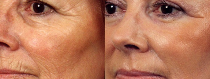 Laser Peel Before & After