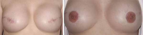 Breast Cancer survivors - Medical Tattooing Before & After