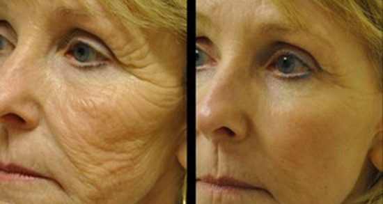 Non-Surgical Facelift Before & After
