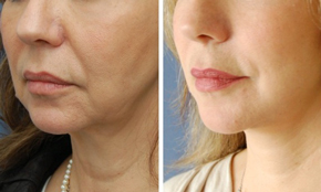 Non-Surgical Neck Tightening Before & After