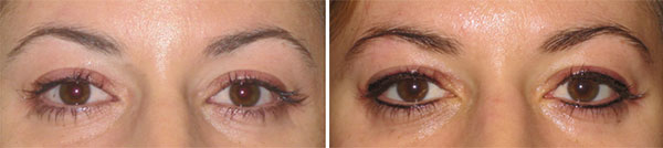 Permanent Makeup Before & After