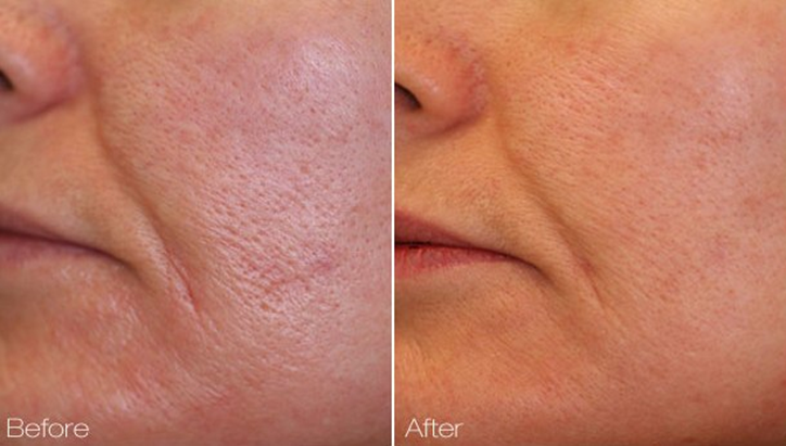 Facial Pore Reduction Pore Tightening In Denver Centennial Colorado