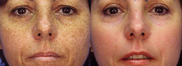 Skin Resurfacing Before & After