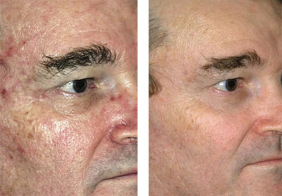 Sun Damage Removal Before & After