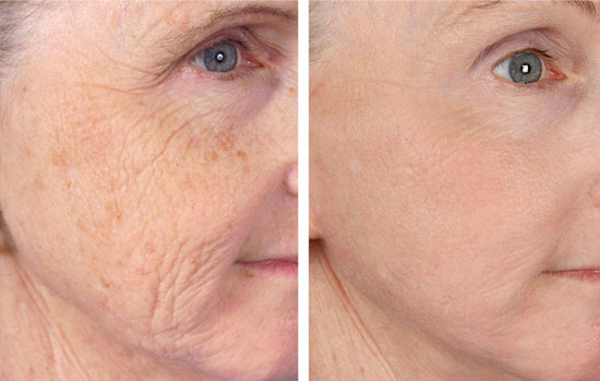Wrinkle Reduction Before & After